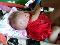 Com hidrocefalia, bebê precisa fazer uma cirurgia no valor de R$ 8 mil