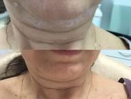 Botox, preenchimento com ácido hialurônico e lipo de papada estão entre os procedimentos estéticos que agora podem ser feitos em um consultório odontológico