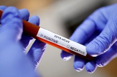 Atibaia confirma 3º caso de paciente com coronavírus