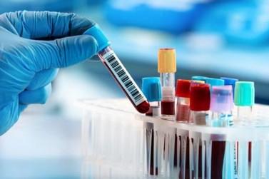 Atibaia registra mais 4 casos positivos de Covid-19 e 1 óbito nesta quinta (18)