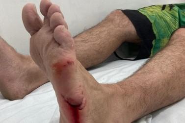 Surfista fica ferido após ser mordido por tubarão, em Navegantes
