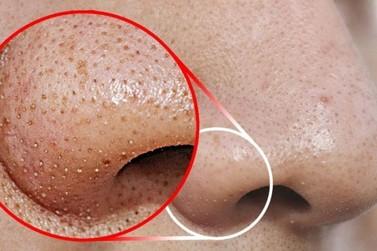 Aprenda 3 formas práticas para se livrar dos cravos