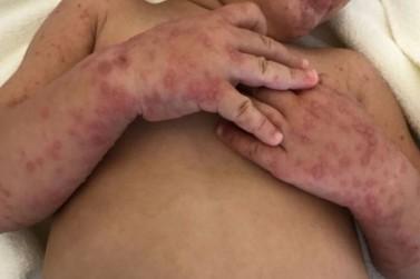 """Saúde emite alerta sobre """"síndrome mão-pé-boca"""" em Terra Roxa"""