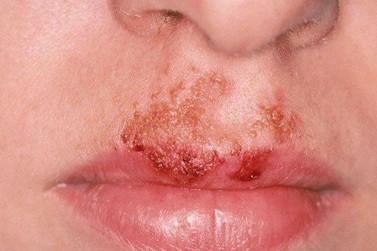 Surto de doença de pele contagiosa que atinge crianças assusta moradores