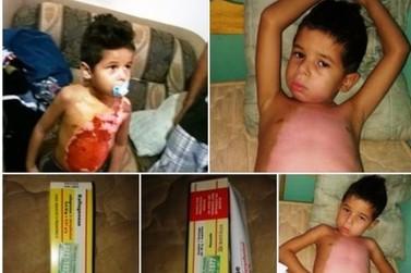 Mãe pede doação de pomada para tratar de filho que se queimou com leite quente