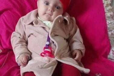 Médicos afirmam que a bebê com hidrocefalia é um milagre