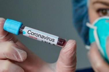 Região tem mais de 900 casos de Covid-19