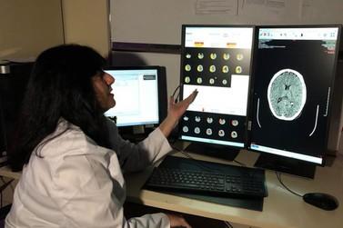 Hospital Moinhos de Vento adquire nova tecnologia que agiliza tratamento de AVC