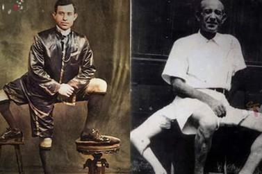A história do homem que tinha 3 pernas, 16 dedos e 2 órgãos genitais