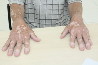 FMJ atende portadores de vitiligo nesta terça (25)