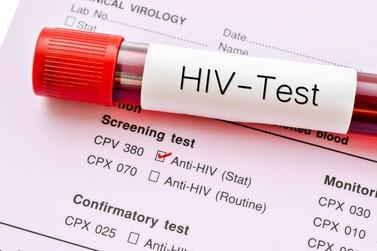 135 mil brasileiros vivem com HIV e não sabem