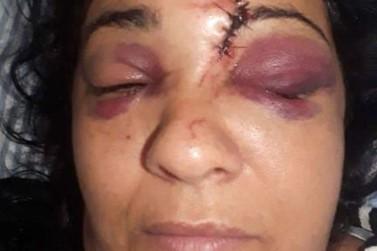 Mulher tem o rosto desfigurado após ser agredida com tijolo por vizinho