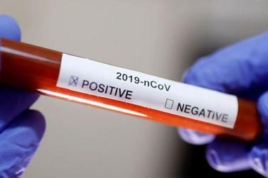 Confirmado primeiro caso de coronavírus em Paranavaí