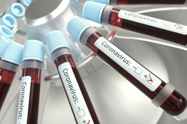 Sobe para seis número de casos suspeitos de coronavírus em Paranavaí