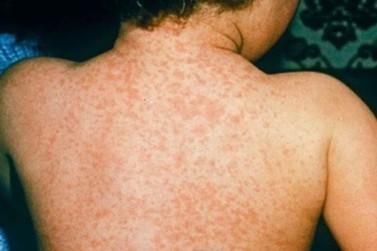 Paranavaí soma seis casos suspeitos de sarampo