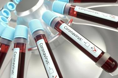 Saúde afirma que 23 pessoas estão com o vírus da covid-19 ativo em Paranavaí