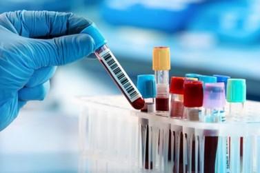 24H: Duas pessoas perdem a vida e 284 são infectadas pelo novo coronavírus em RO