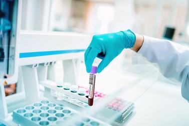RO soma mais cinco mortes e 184 novos casos de infecção pelo coronavírus