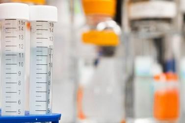 Rondônia registra 1.522 óbitos e 77.615 casos de coronavírus