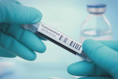 RO registra 968 novos casos e mais 14 óbitos por covid-19