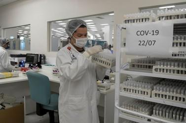 Covid-19: mortes passam de 242 mil e casos somam quase de 10 milhões