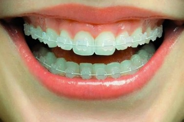 Estética Bucal: Mais agilidade e menos dor na Ortodontia
