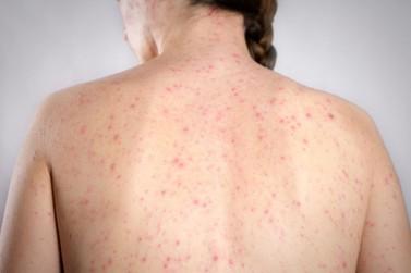 Período de férias e viagens acende alerta para vacinação contra o sarampo