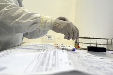 Boletim da Saúde desta segunda confirma 29 novos casos de covid-9 em Umuarama